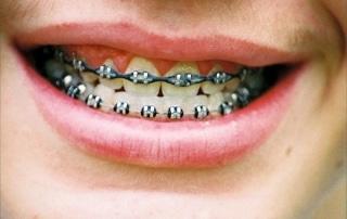 Dental SEO Brace Yourself